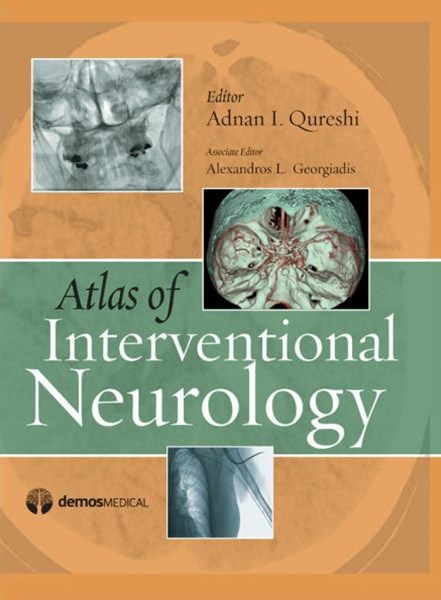 Atlas of Interventional Neurology