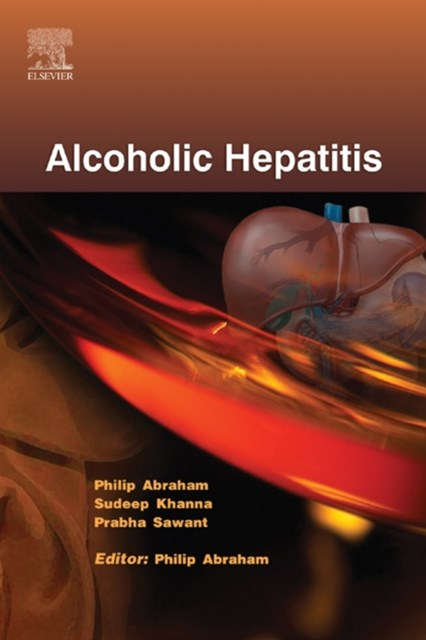 (ebook) Alcoholic Hepatitis - ECAB