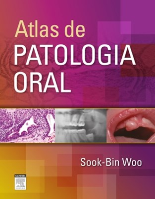 (ebook) Atlas de Patologia Oral